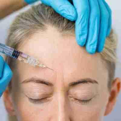 anti-wrinkles derma fillers