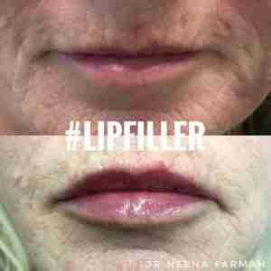 lipfiller