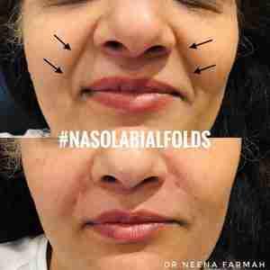 nasolabial folds